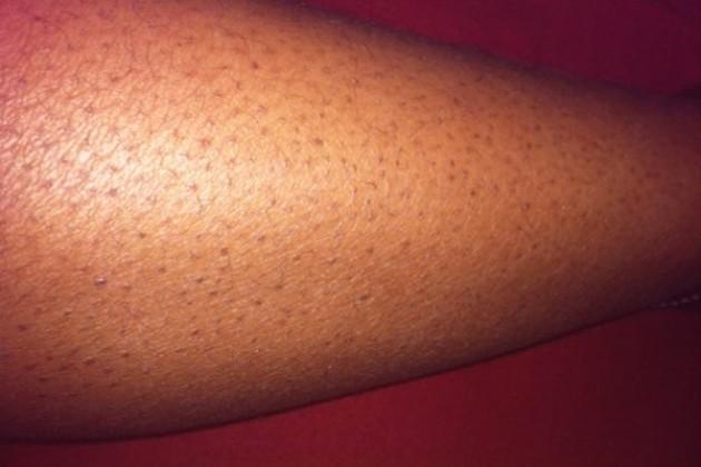 Эффект клубничных ног и как с ним бороться