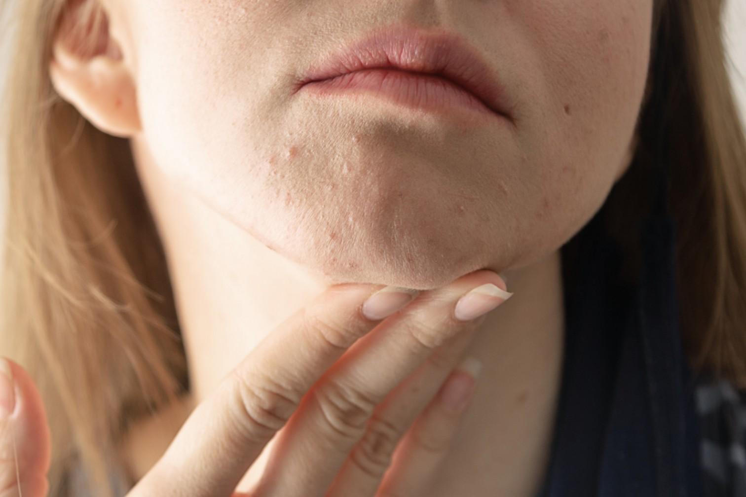 Как системно лечить акне