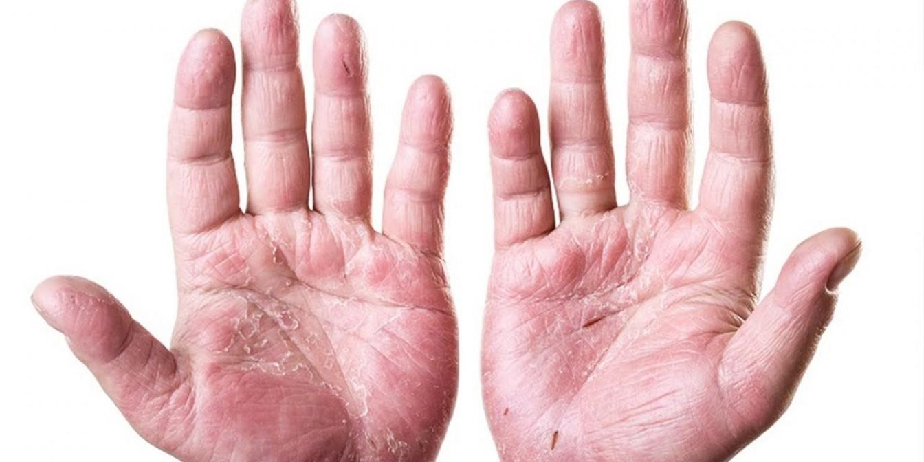 Какие симптомы проявляются при экземе на руках