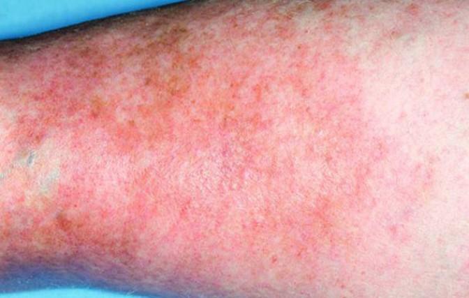 Варикозная экзема: нижних конечностей, как лечить, венозная, на ногах, причины, симптомы и стадии развития