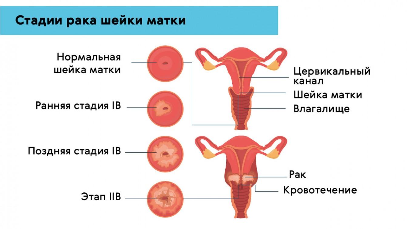 Специфика лечения у женщин