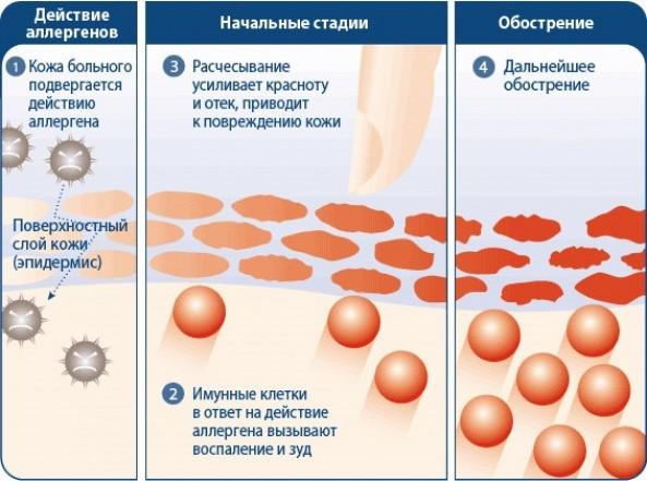 От дерматита