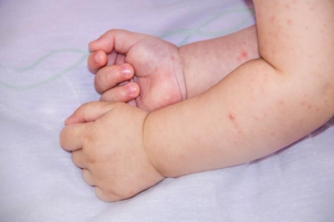 Сыпь у ребенка на ногах и руках, высыпание на коже