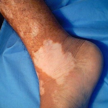 Белые пятна на коже ног и спины: причины, и как избавиться :