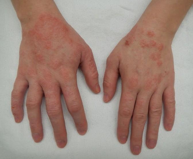 Водянистые пузырьки на коже — о каких заболеваниях говорят симптомы