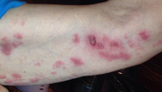 Основа борьбы с аллергией на коже: антигистаминные и гормональные препараты