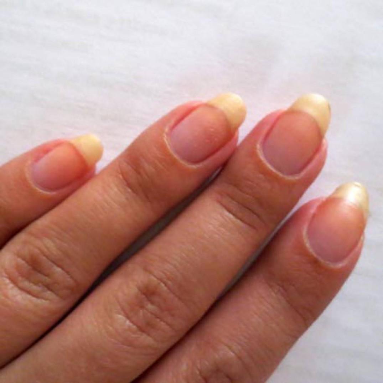 Варианты лечения желтых ногтей