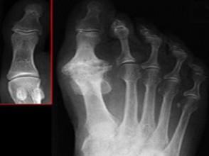 Шишки, образованные костными выростами (остеофитами)