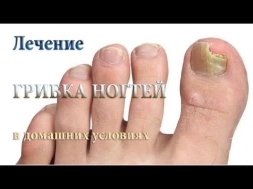 Народные средства для лечения грибка на ногтях ног
