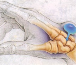 Ужасная гигрома на кисти руки — как избавится?