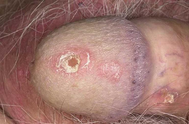 Белые пятна при аллергии на члене