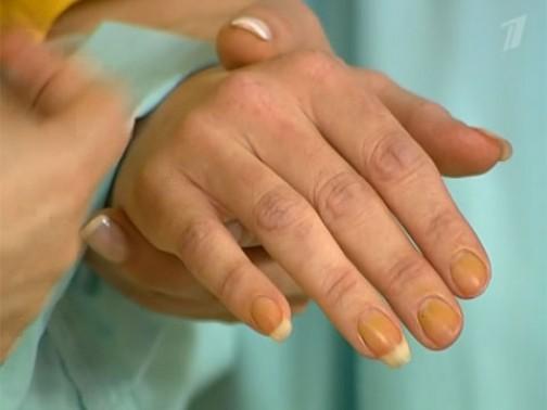 Как убрать желтизну от никотина с пальцев и ногтей? способов очистить кожу