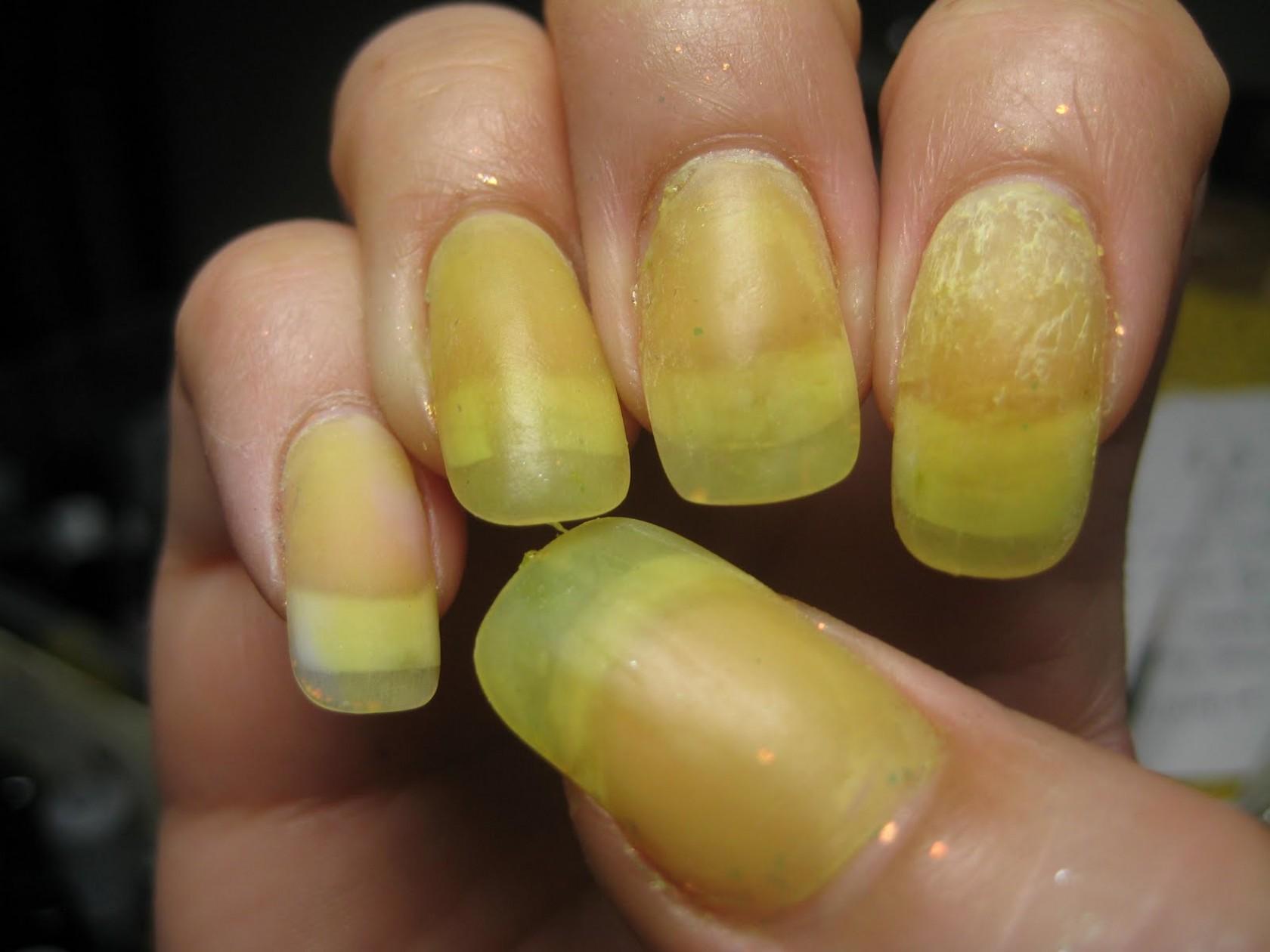 Лечение и профилактика желтизны ногтей