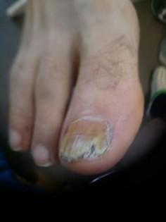 Лечение грибка ногтей и ног