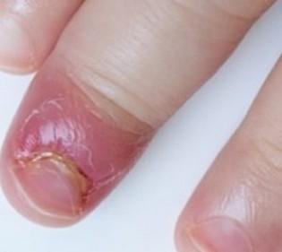 Герпесная инфекция воспаленного пальца