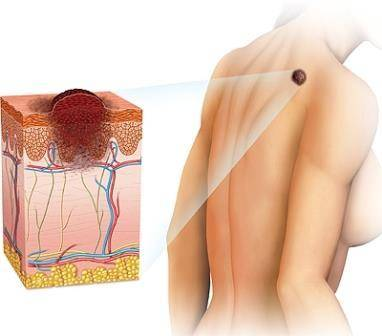 Симптомы начальной стадии меланомы: фото