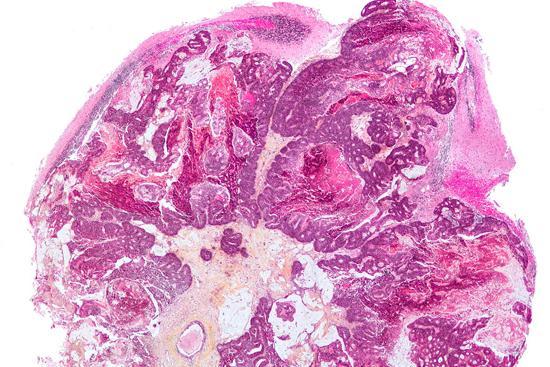 Меланома головного мозга