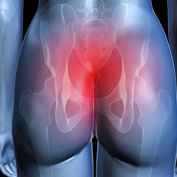 Шишка в заднем проходе — методы эффективного лечения