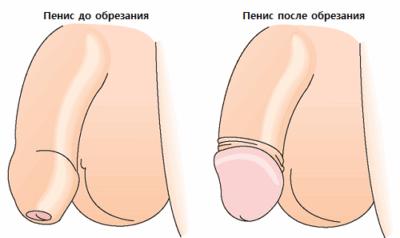 После обрезания: что нужно знать, чтобы не было осложнений и деформаций