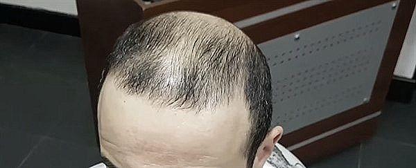 Почему сильно выпадают волосы у мужчин в 30 лет — причины и лечение
