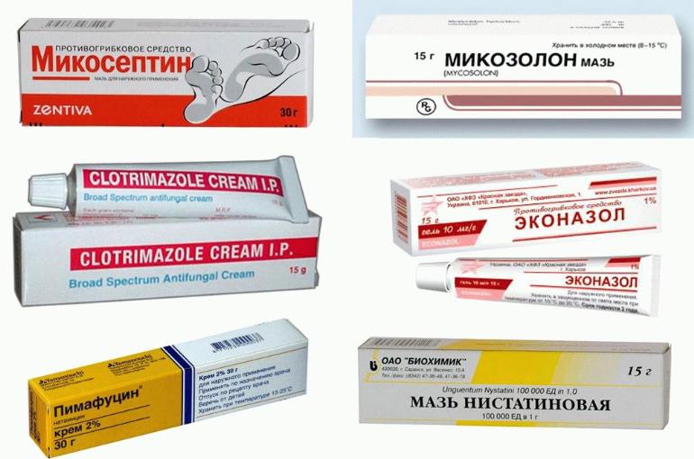 Симптомы и признаки молочницы у мужчин