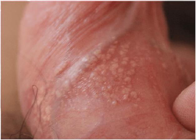 Почему появляется белая сыпь на головке и крайней плоти?