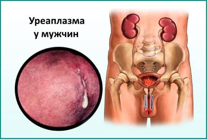 Ureaplasma parvum: характеристика, анализы, симптомы у женщин и мужчин, чем опасна, нужно ли лечить
