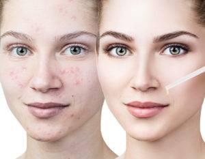 Эфирное масло лаванды для кожи лица