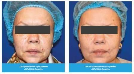 Фотодинамическая терапия угревой болезни