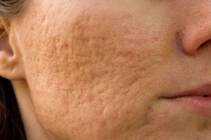 Лечение атрофических рубцов на лице — инъекции, лазер и иссечение