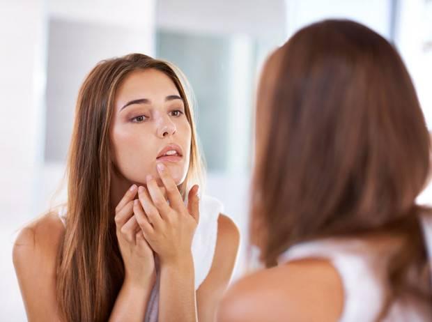 Прыщи на лице: основные причины