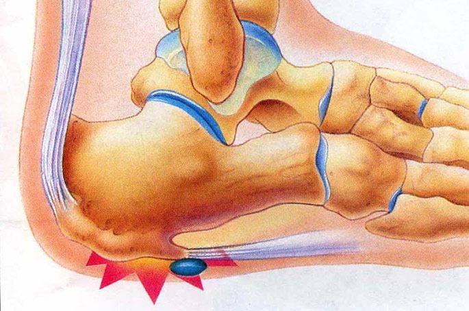 Пяточная шпора: симптомы, диагностика и лечение в домашних условиях