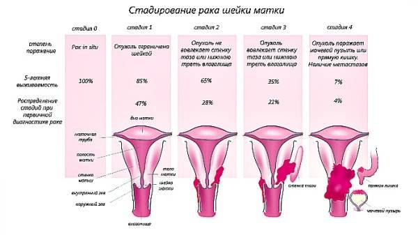 Рак шейки матки: приговор отменяется!