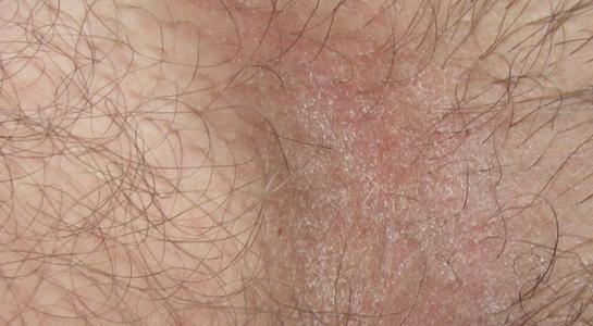 Прыщи на лобке у мужчин: фото, возможные болезни, описание