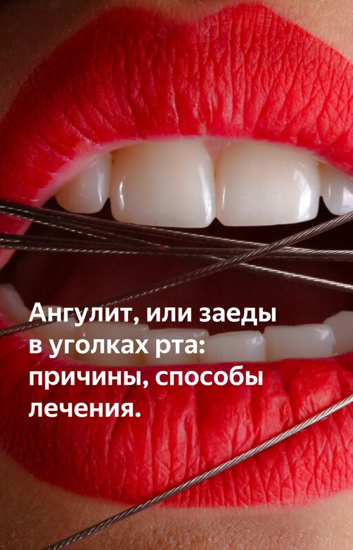 Причины и лечение заед в уголках рта