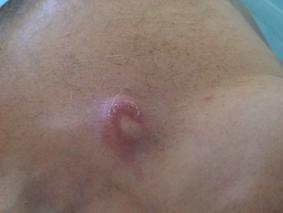 Почему появляются папилломы на теле человека, насколько они опасны и как их лечить?