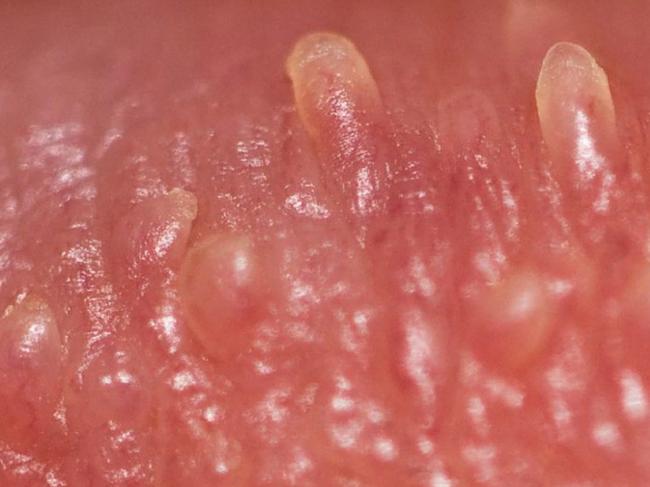 Чем опасен вирус папилломы человека и как от него избавиться