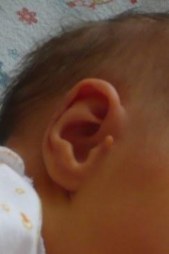 Как избавиться от папилломы в области уха?