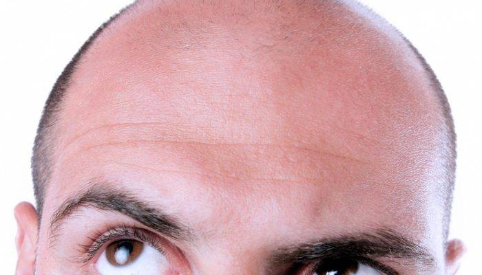 Почему лысеют мужчины: основные причины и методы лечения