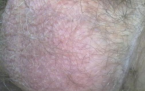 Почему чешется мошонка? методы лечения зуда, покраснения и шелушения кожи в интимной зоне