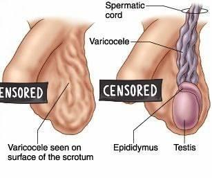 Что делать, если болит левое яичко у мужчины: возможные заболевания и методы лечения