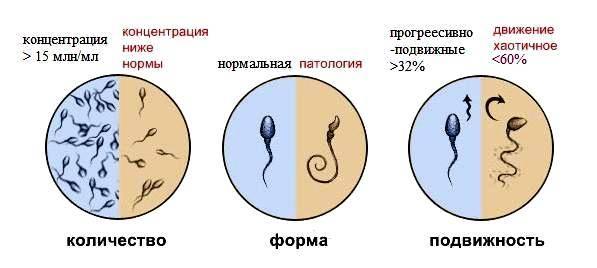 Агглютинация сперматозоидов: диагностика, лечение, профилактика
