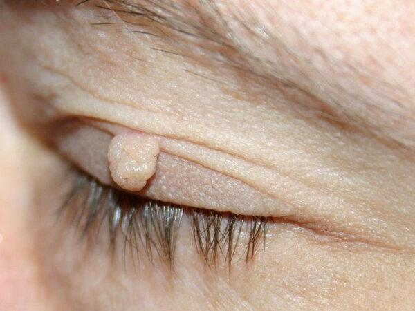 Папиллома на веке глаза: причины, симптомы и методы лечения