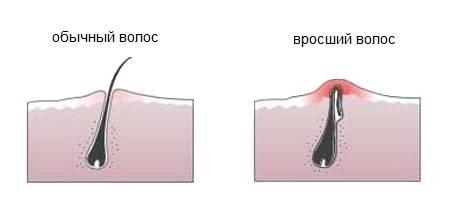 Шелушение в паху у мужчин: фото, описание заболеваний, лечение