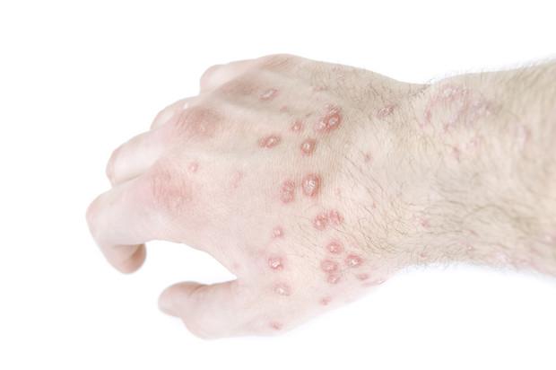 Высыпания на руках в виде красных прыщиков и точек: причины, методы устранения