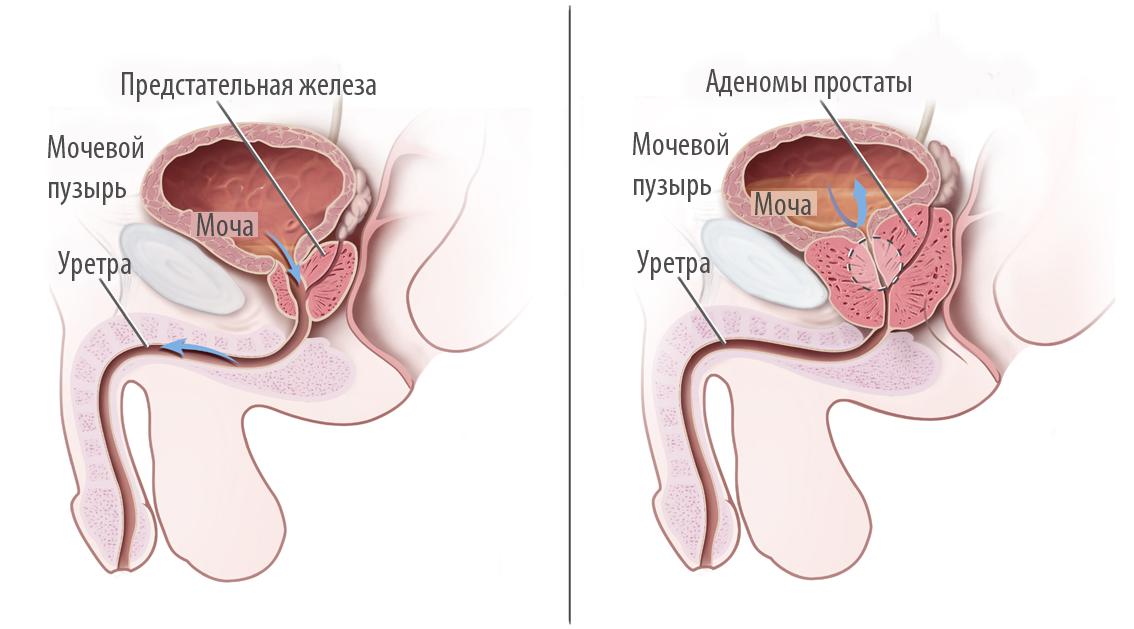 Тур операция аденомы простаты последствия