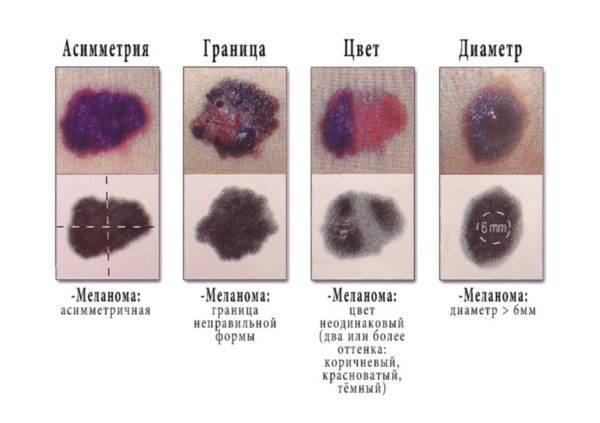 Симптомы, типы и лечение меланомы всех стадий