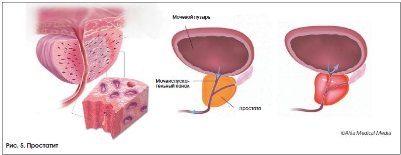 Симптомы и лечение урологических заболеваний у мужчин