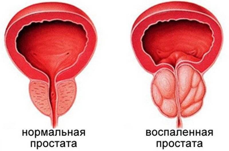 Что такое фиброз предстательной железы и способы его лечения