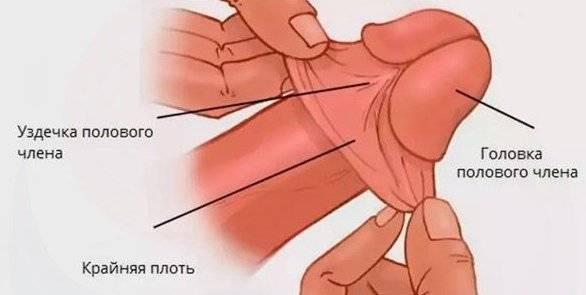 Уздечка порвалась на головке: причины надрыва и лечение